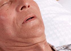 睡眠時無呼吸とは?